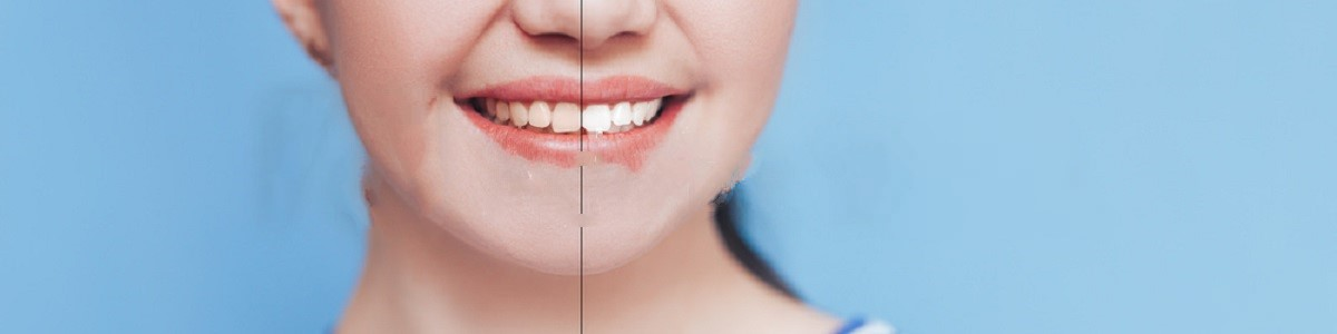 How Non-Natural Teeth Bleaching Methods Cause Gum Irritation?