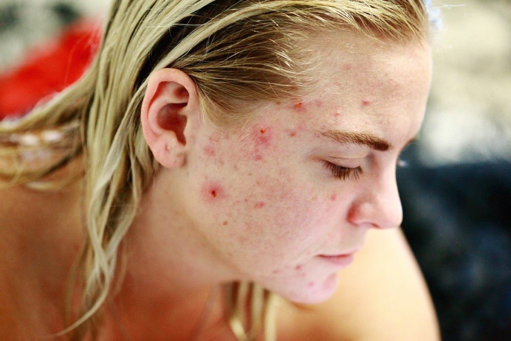 Understanding External And Internal Causes To Better Cure Acne Skin