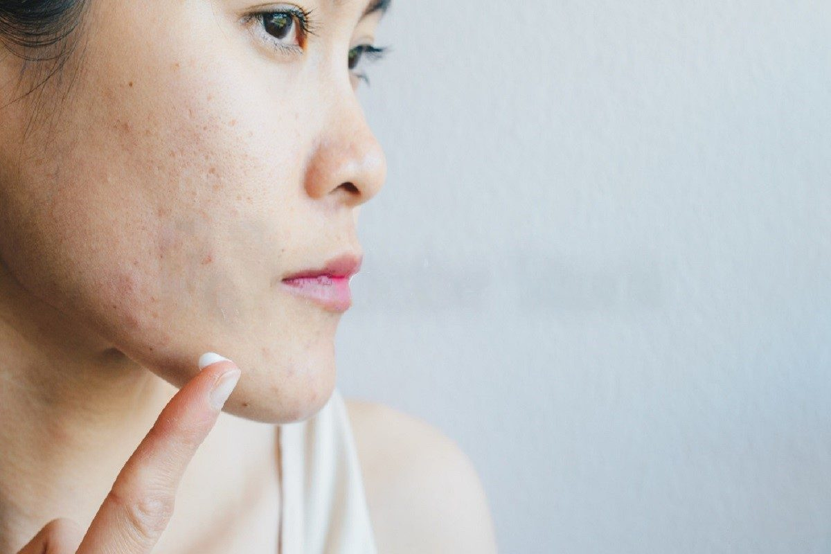 Common Mistakes A Rookie Can Make When Looking At Cures For Acne