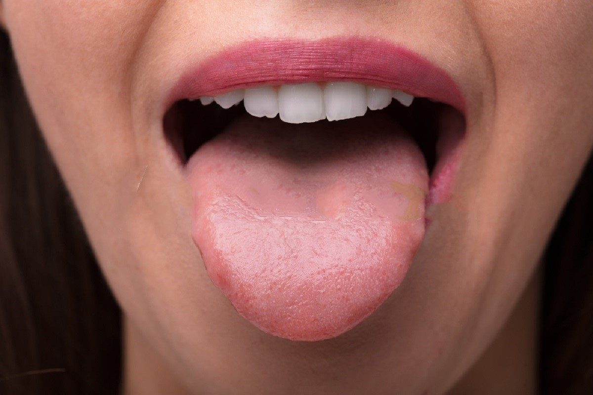 How A Coating On The Back Of Tongue Cause Bad Breath?