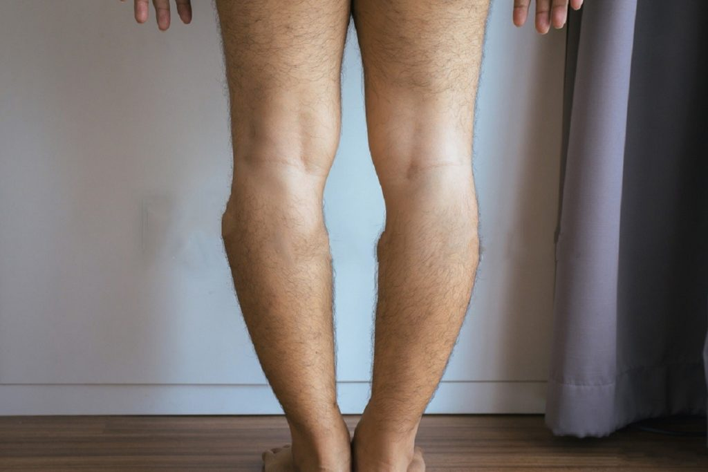 Improving Bow Legs Naturally - Without Surgery