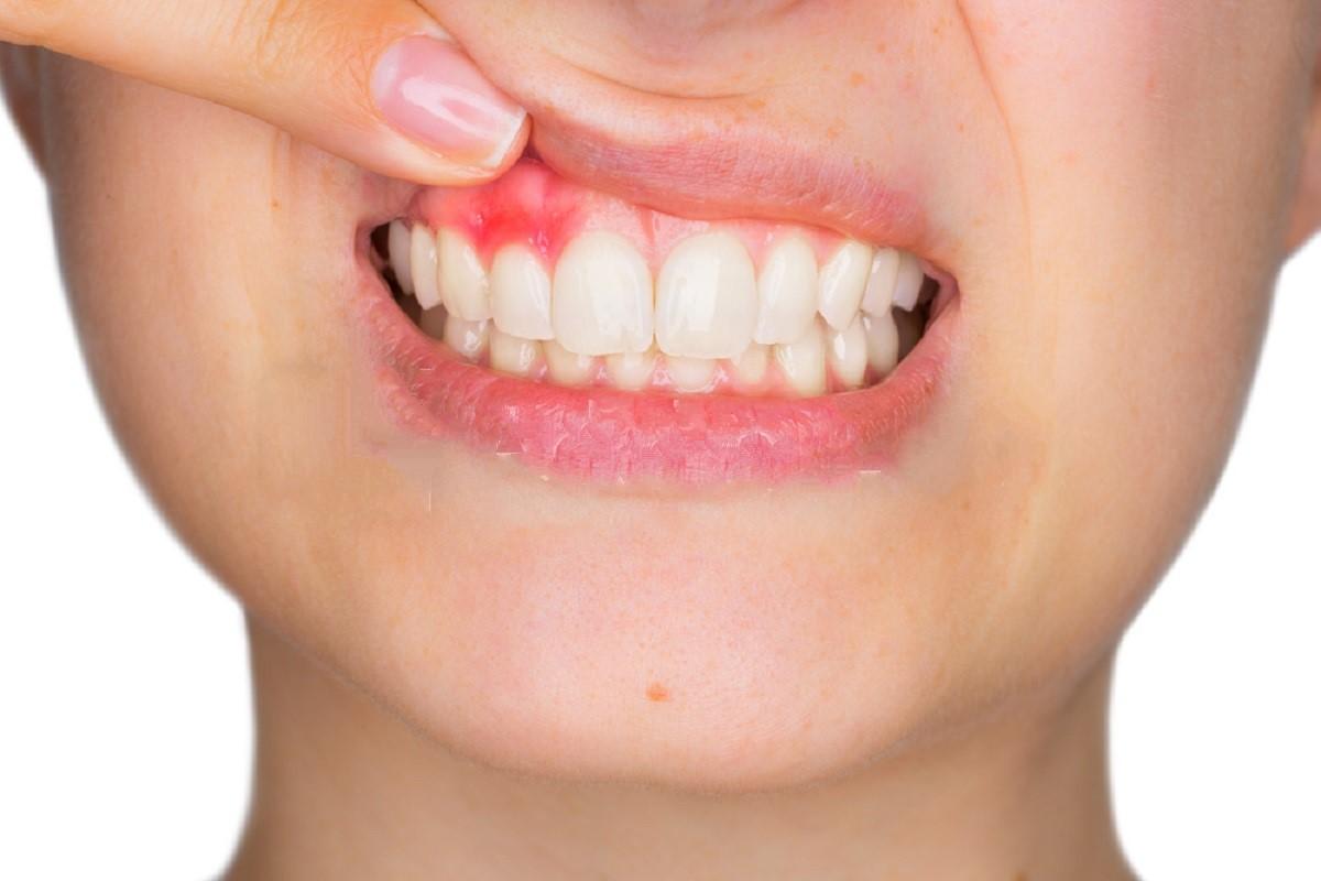 Gum Disease As Bad Breath Cause