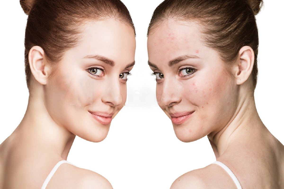 Accutane Side Effects Exposed From Treating Acne