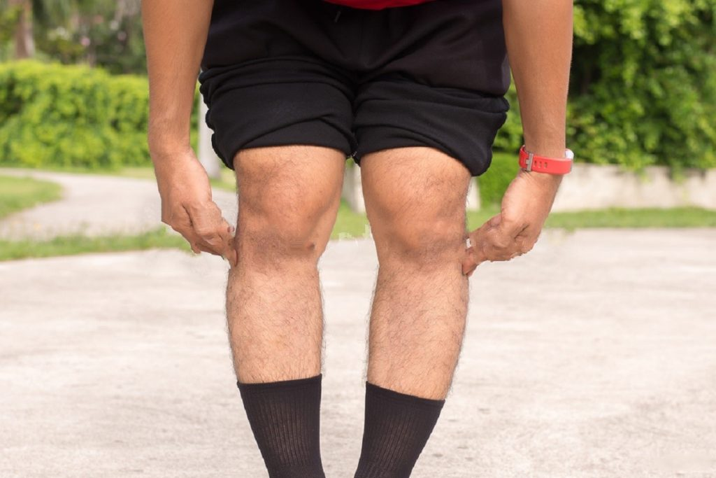 Modern Remedies For Bow Legs