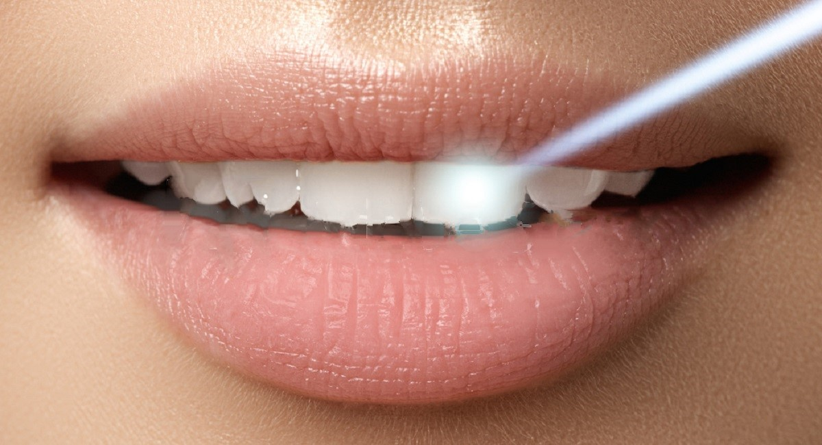 Reasons To Try Laser Teeth Whitening