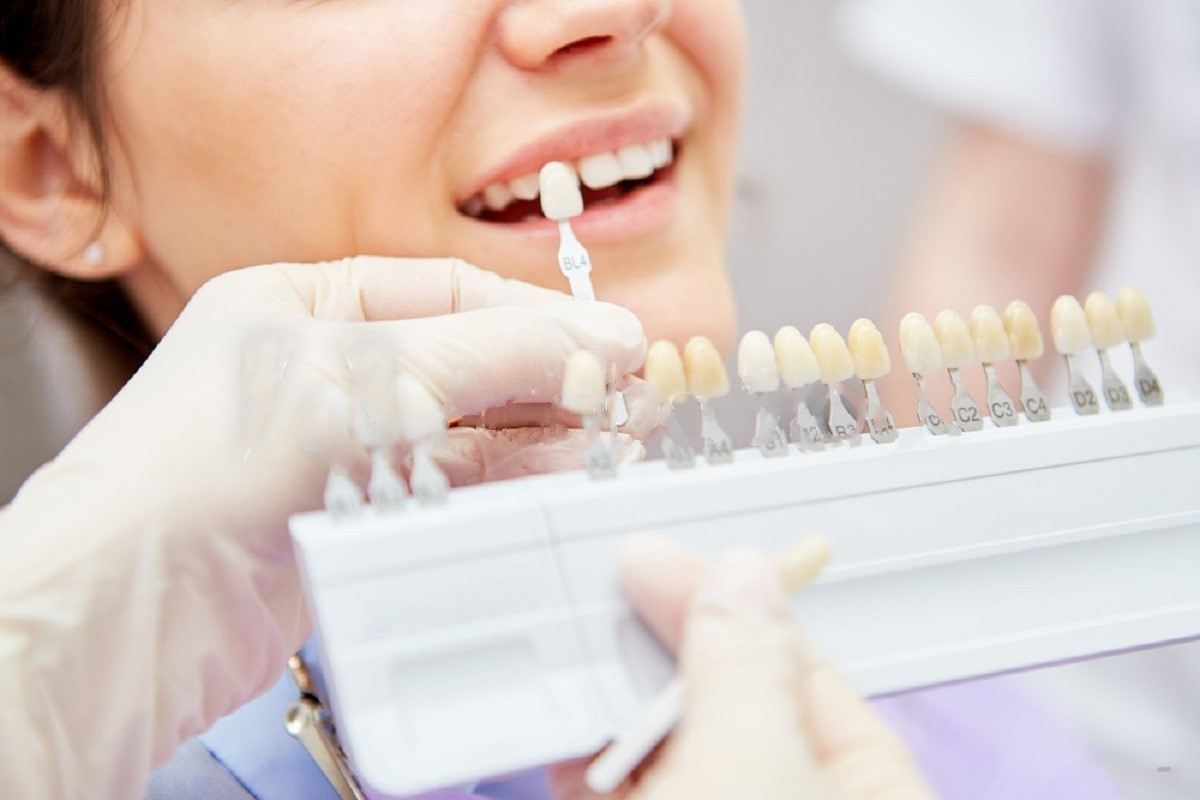 Light-Accelerated Bleaching Is a Teeth Whitening Treatment