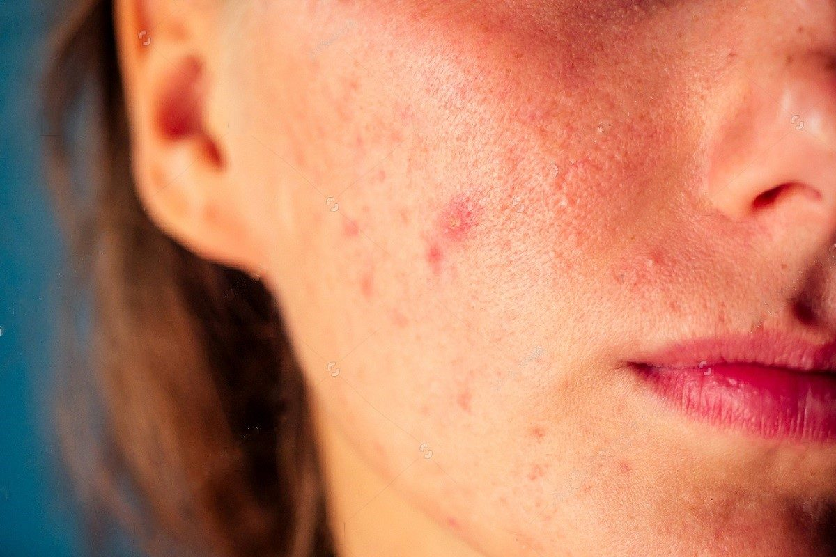 Acne Bacteria And Environment
