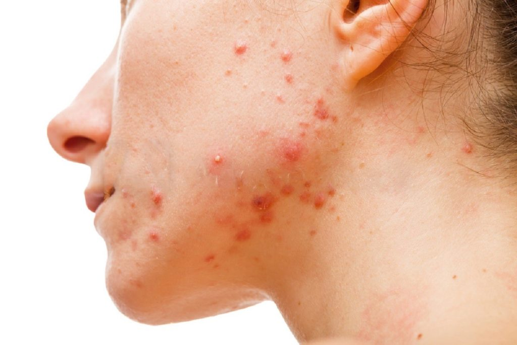 7 Things You Should Never Do To Your Skin Whether You Have Acne Or Not