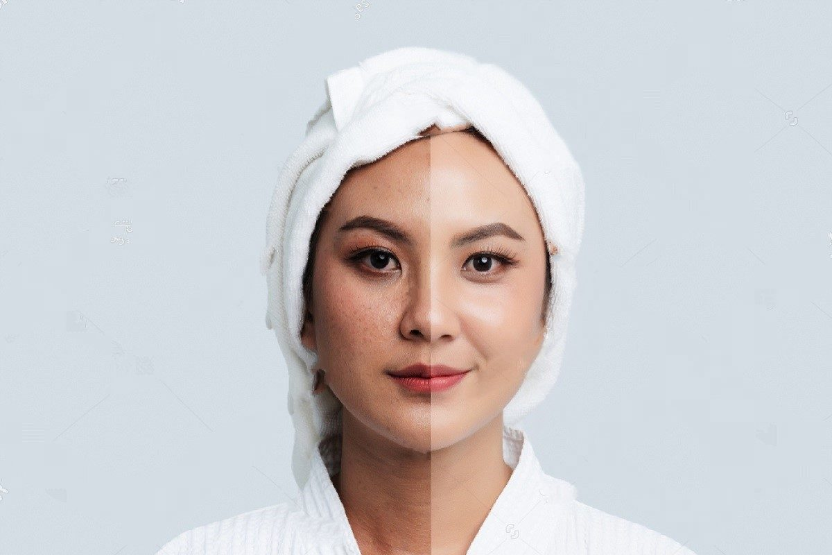 Keep Dark Spots And Hyperpigmentation Away With These Simple Steps