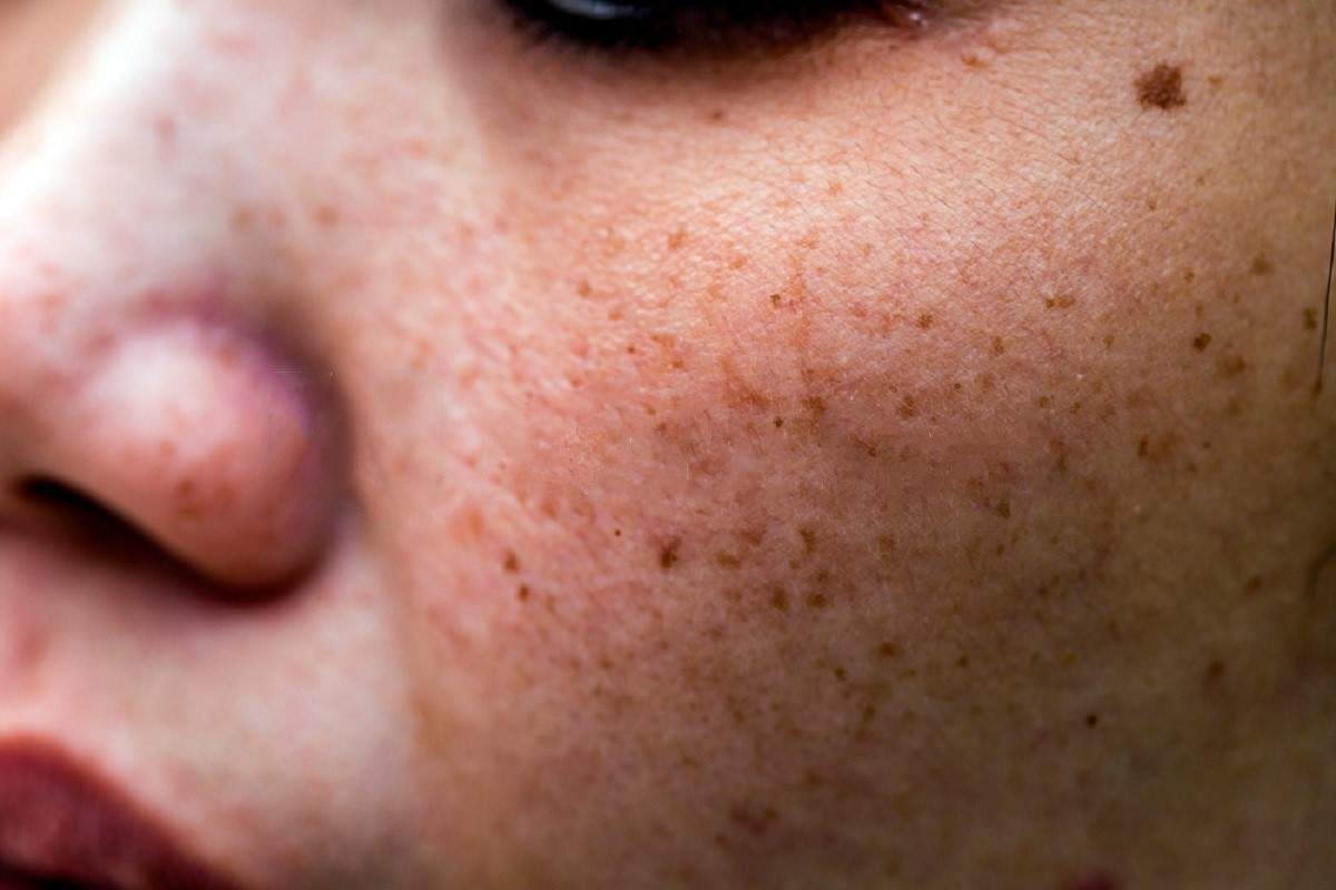 Treating Dark Spots Caused By Acne