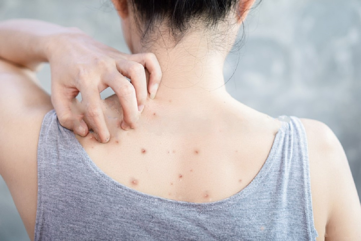 Types Of Brown Spots - The Skin Problem