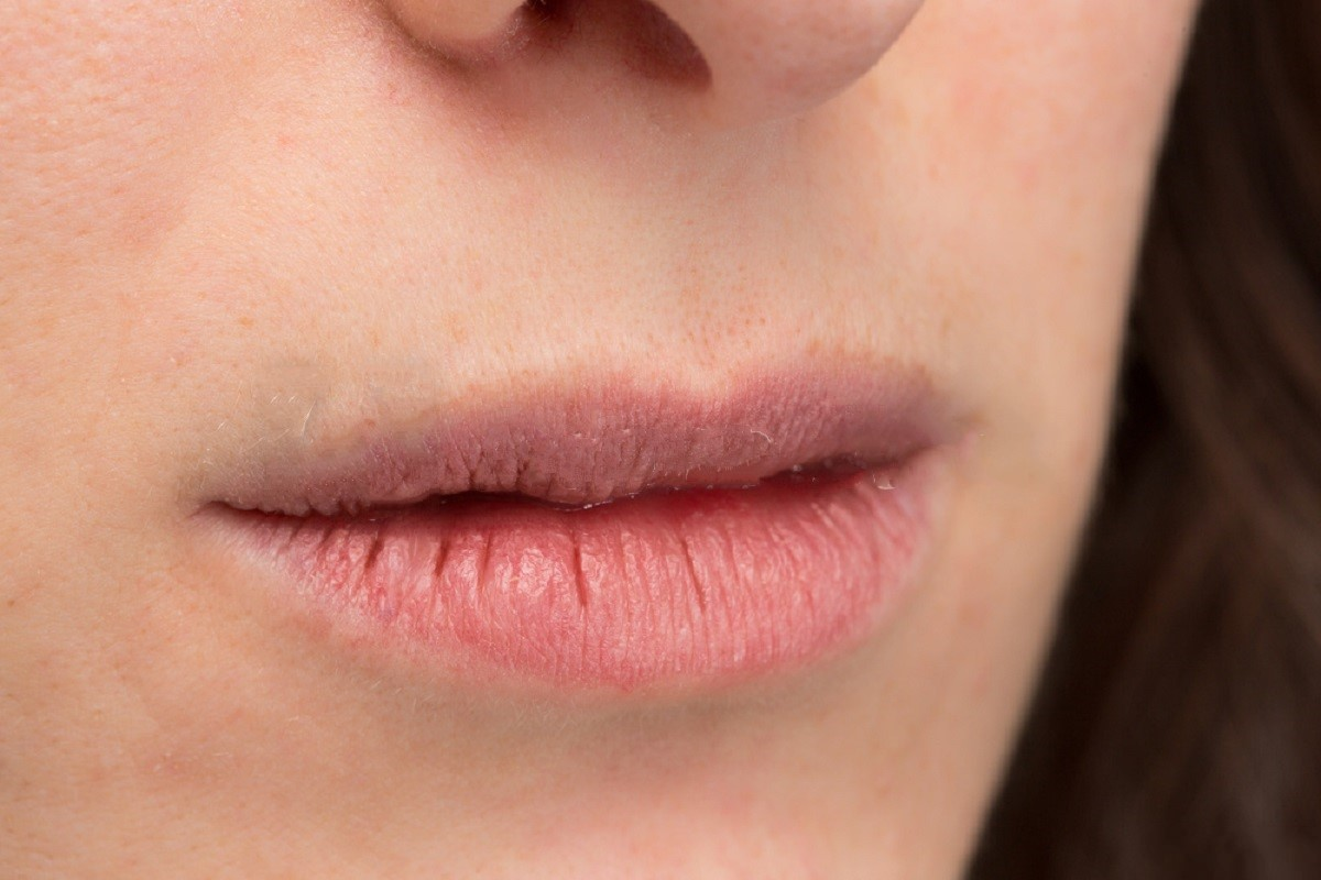 Why Dry Mouth Can Cause Bad Breath?
