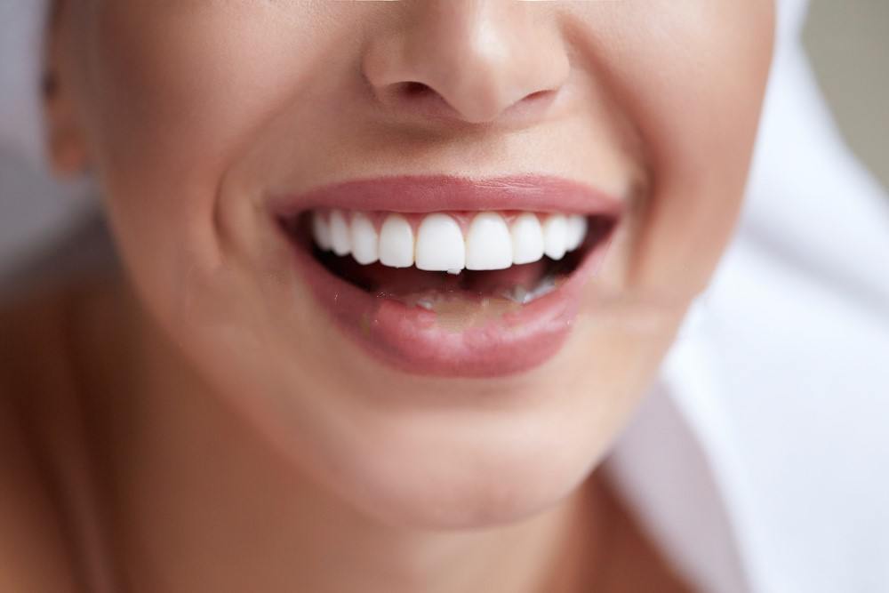 Danger Of Teeth Whitening Using Non-Natural Techniques - Chemical Burns